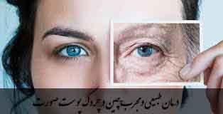 درمان طبیعی و مجرب چین و چروک پوست صورت