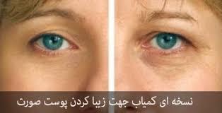 نسخه ای کمیاب جهت زیبا کردن پوست صورت